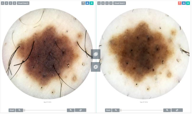 /media/news_images/2018/09/20/Dermengine_Dermatology_EMR_Software.JPG