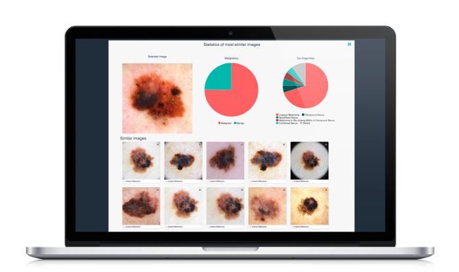 /media/news_images/2018/11/20/artificial-intelligence-for-dermatology-software.png